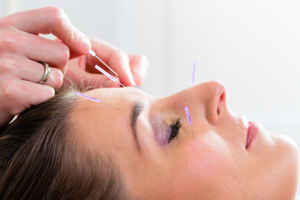 Cosmetic Acupuncture in Surrey Hills
