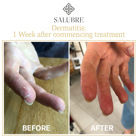 Dermatitis before and after applying Salubre Revitalising Scalp and Body Cream