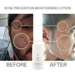 Acne Prevention Moisturising Lotion