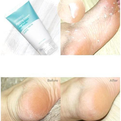 THE FACE SHOP Foot Cream THE FACE SHOP Smile Foot Peeling Cream - KollectionK