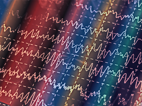 An image of EEG scans indicating different electrical readings depicted in waveforms.