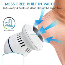 Load image into Gallery viewer, Pedi Vac - Rechargeable Callus Remover with Built-in Vacuum - BUY 1 GET 1 FREE!