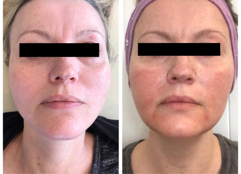 halo laser before and after photos