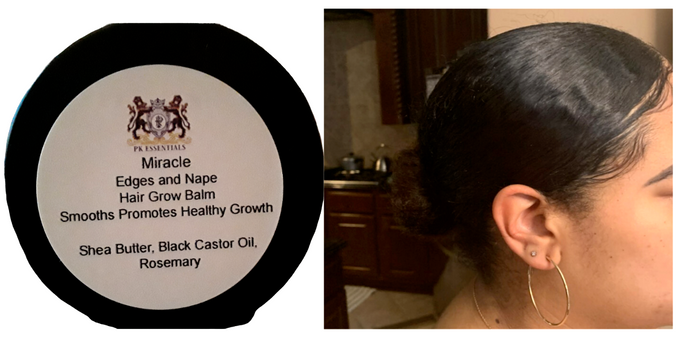 Miracle Edge and Nape Grow Balm