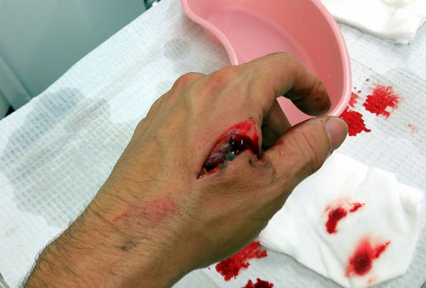 laceration before stitches