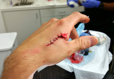 laceration after stitches