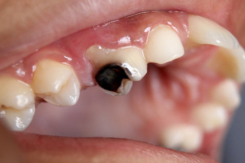 Rotting Tooth, Image depicting tooth decay