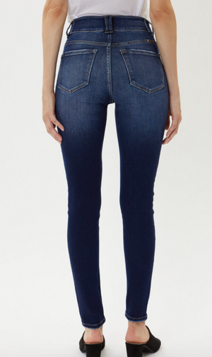 Double-Button Dark Wash Skinny Jeans