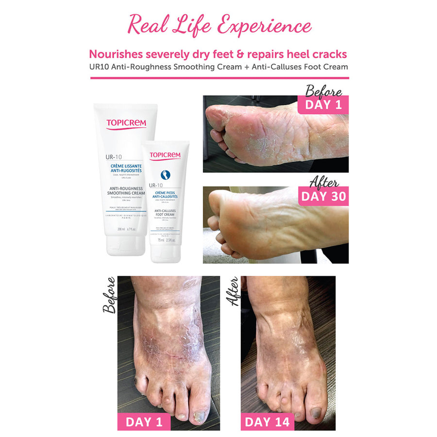 Topicrem UR10 - Anti-calluses Foot Cream