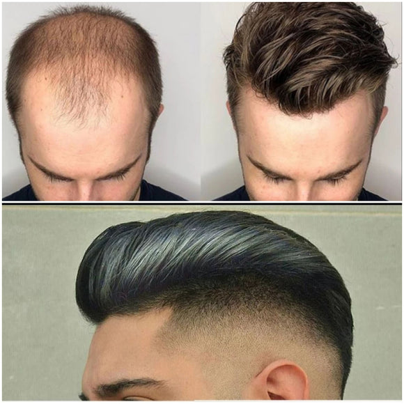 Men Hair Replacement Toupees-HH