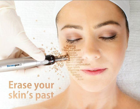 Dermapen is here! What is it and should you try it?