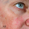 broken capillaries, anika skincare, radio frequency, skin imperfections, laser alternative, Hudson, NH, non invasive skin treatment, SOuthern Nh, Nashua area