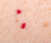 Cherry Angiomas: What are they? How Do I Get Rid of Them   anika skincare non invasive skin care treatment nashua area