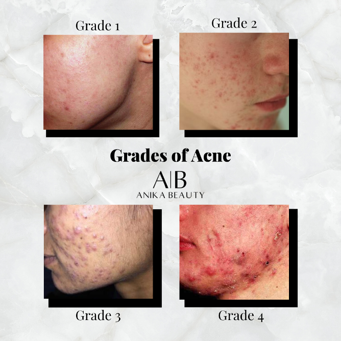 acne, acne skincare routine, different types of acne, acne homcare, acne skincare clinic, acne facials, anika skincare and makeup