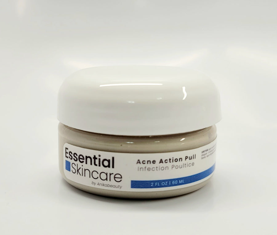 Facial Skincare Services - shop-anikabeauty-com - Acne Action Pull - Infection Poultice Essential Skincare by Anikabeauty Face.