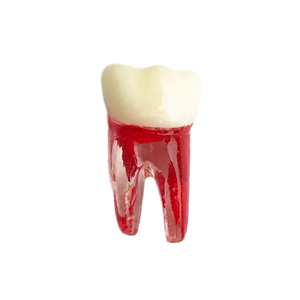 Molar inferior - endobloc morfologic transparent