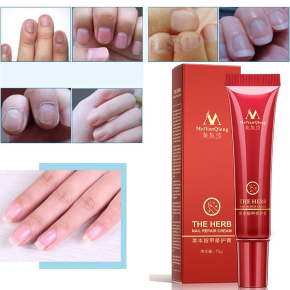 Nail Treatment Cream