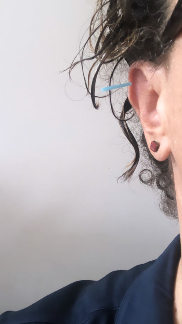 Why We Love Ear Acupuncture