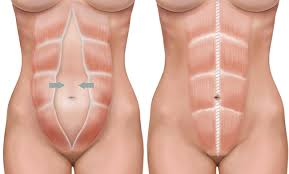 This Is Your Body On Pregnancy Impetus Physical Therapy