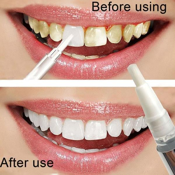 1PCS Hot Creative Effective Teeth Whitening Pen Tooth Gel Whitener Bleach Stain