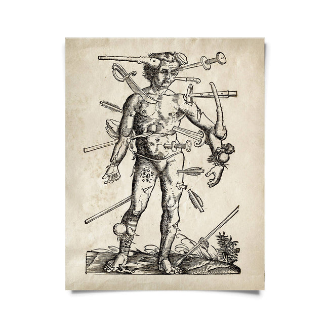 Vintage Anatomy Wounded Man Print 16x20