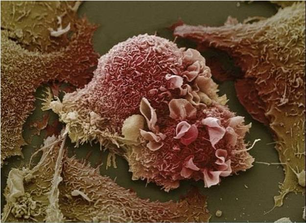 3D image of cancer cells under microscope