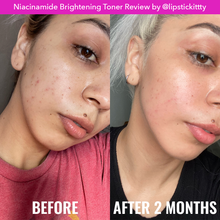 Load image into Gallery viewer, Niacinamide Brightening Toner