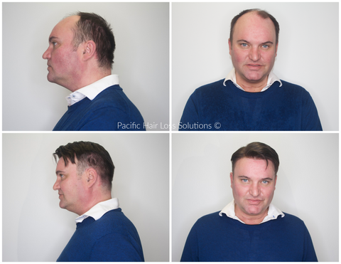 older male hairpiece before and after