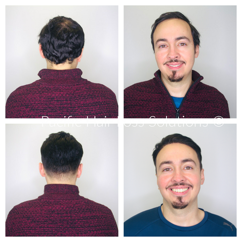 Men's full lace human hairpiece system toupee before after