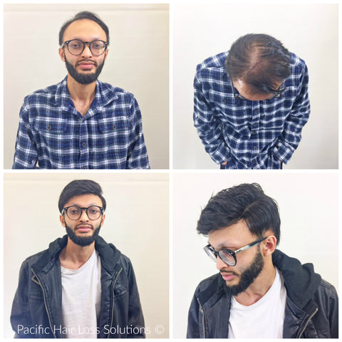 Hairpiece for young male hair loss before after Pacific Hair Vancouver