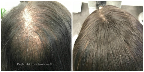 Other Hair Loss Conditions – Pacific Hair Extensions   Hair Loss ... bc5d93250