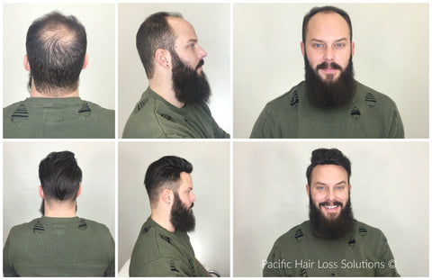 male pompadour hair piece before and after
