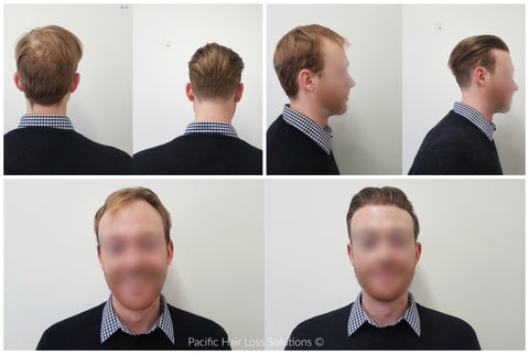young male pattern baldness hair piece solution vancouver