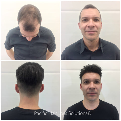 thicker hair piece system for men