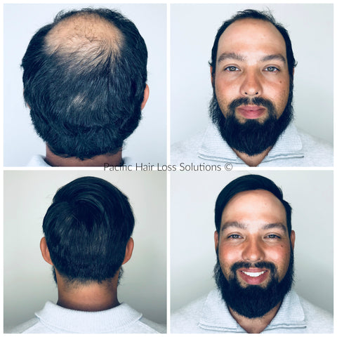 before after men's hair piece