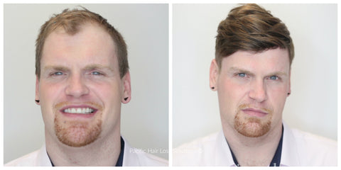 before and after male pattern baldness red hair thin skin