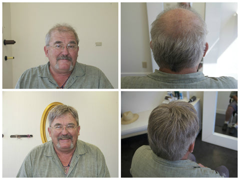 male hair loss solution for grey hair