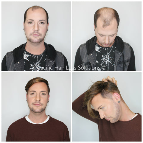 Men's before after long hair piece system installation at Pacific Hair Vancouver