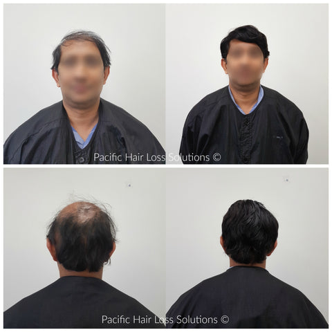 hair piece wig for male alopecia Vancouver