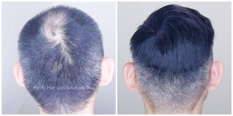 Before and after of men's hair piece with face pacific hair vancouver