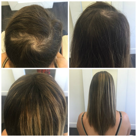 human hair piece for trichotillomania hair loss vancouver