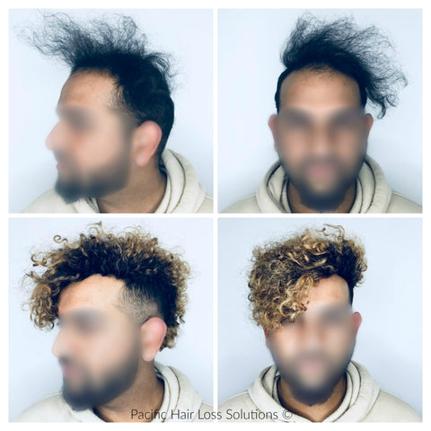 before and after of curly hairpiece (Odell Beckham Jr style) pacific hair