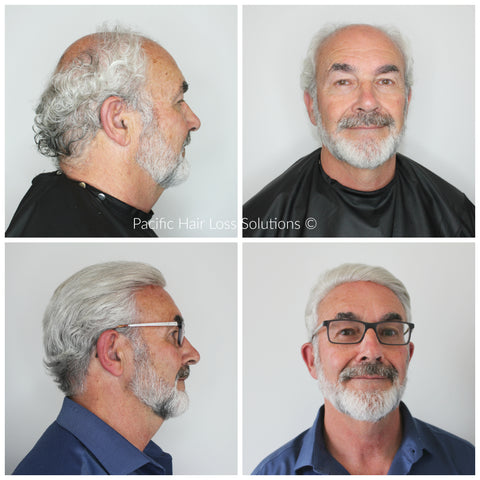 Men's white grey hair piece system installation at Pacific Hair Vancouver