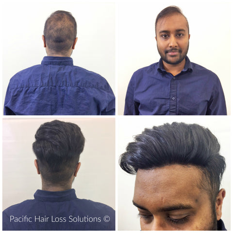 Male hair loss before after pacific hair extensions hair non surgical hair loss male hairpiece system before after pacific hair vancouver pmusecretfo Gallery