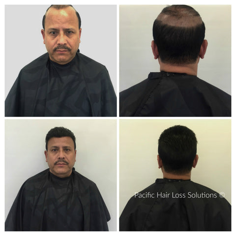 before after male pattern baldness hair piece Vancouver