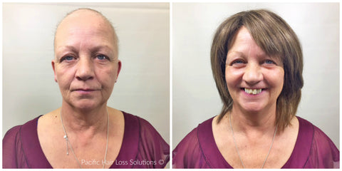 wigs for chemotherapy hair loss Vancouver