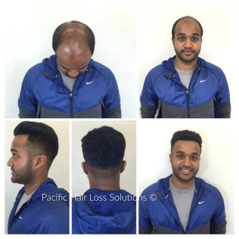 non-surigcal men's hair piece system Vancouver