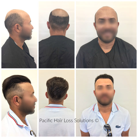 male hair piece system for fully bald head Vancouver