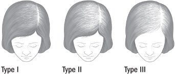 common female hair loss patterns