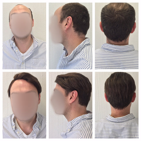 hair piece system for men's balding Pacific Hair